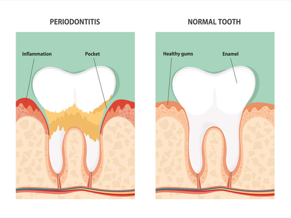 Diagram of periodontitis and health tooth